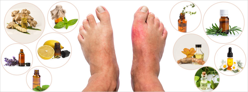 reduce-the-risk-of-gout