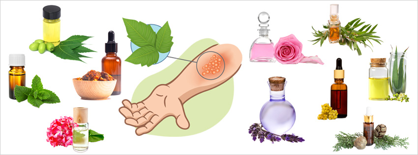 essential-oils-for-poison-ivy