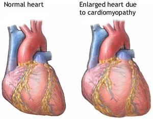 overview of congestive heart failure essay Heart failure, or congestive heart failure (chf), means the heart can't pump enough blood learn about the signs, symptoms and causes.